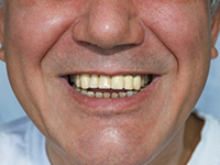 Patient's teeth after dental bridge shows all teeth present