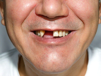 Patient's teeth before dental bridge shows gap in teeth