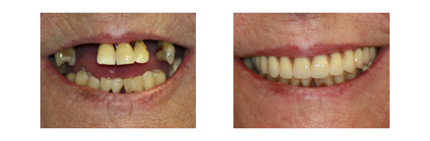 Dental implant before & after 1