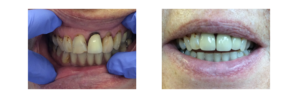Dental implant before & after 3