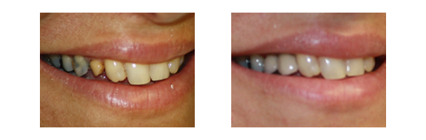 Dental Implants | Permanent Replacement for Missing Teeth ...