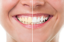 Teeh whitening before and after comparison