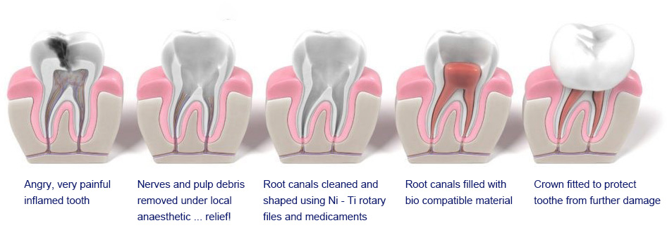 Various stages of root canal treatment