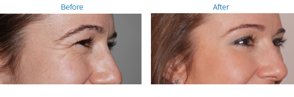 Before, visible wrinkles around the eye. After, no wrinkles around eye are visible