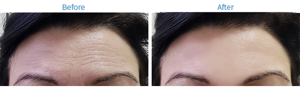 Before, visible wrinkles on the forehead. After, no wrinkles on forehead are visible
