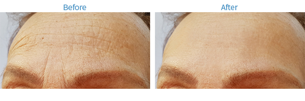 Before, visible wrinkles between the eyebrows. After, no wrinkles between the eyebrows are visible